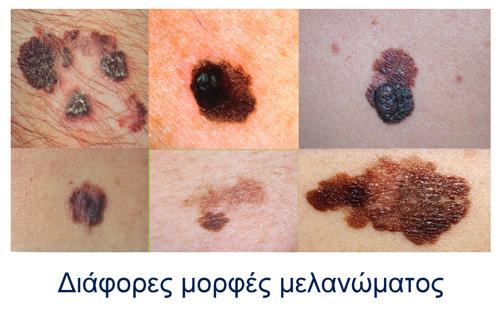 Μελάνωμα - Κακοήθεις όγκοι δέρματος