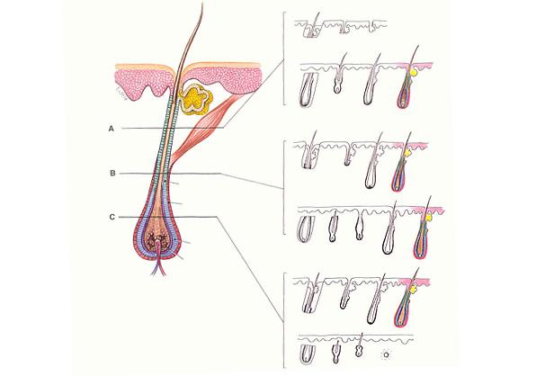Μεταμόσχευση μαλλιών