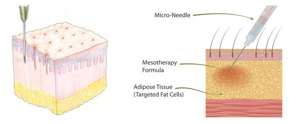 Μεσοθεραπεία
