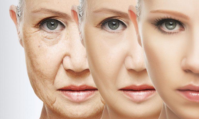 PolyFiber Lifting, η νέα μέθοδος για Face Lifting χωρίς χειρουργείο