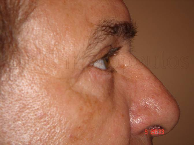 After-Βλεφαροπλαστική