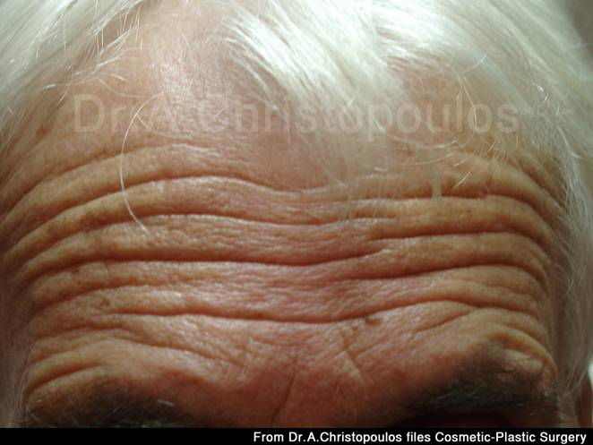 Before-Botox για ρυτίδες