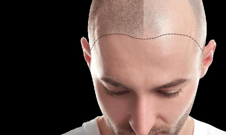 Πως να διαλέξω κατάλληλο Κέντρο Εμφύτευσης Μαλλιών;